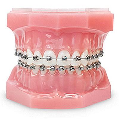 feste zahnspangen-brackets-ohne-spannungsschmerz