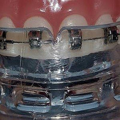 mundschutz zahnspange sportler kieferorthopäde essen