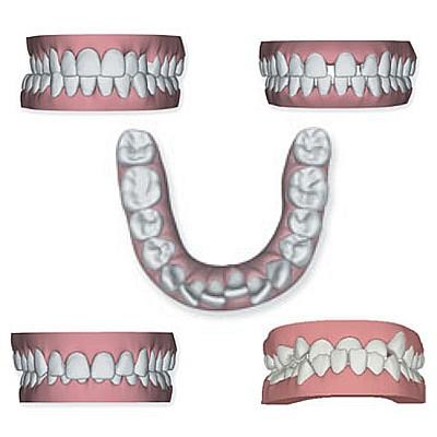 Übersicht zahn kiefer fehlstellungen