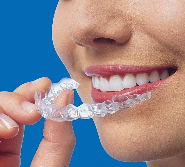 Invisalign Teenager Aligner unsichtbare herausnehmbare Zahnspange