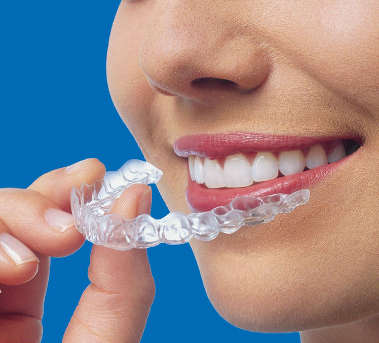 Unsichtbare herausnehmbare Zahnspange