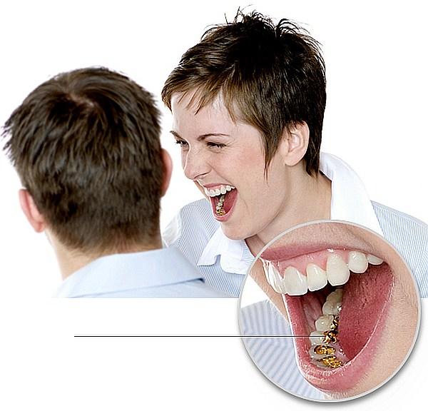 Zahnspange unsichtbar innen Incognito 3Mlingual